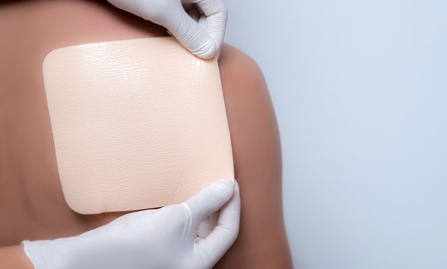 Advanced Wound Dressing for Optimal Healing
